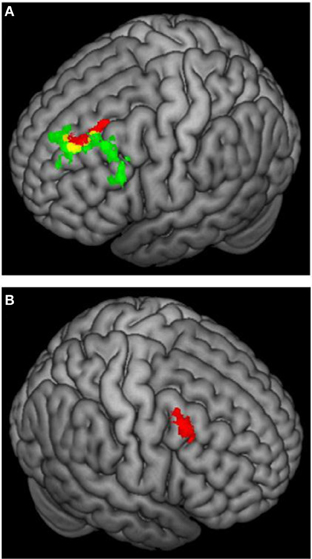 localization of brain