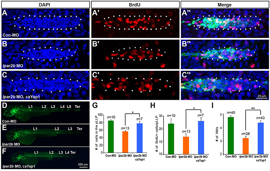 Frontiers | Lpar2b Controls Lateral Line Tissue Size by