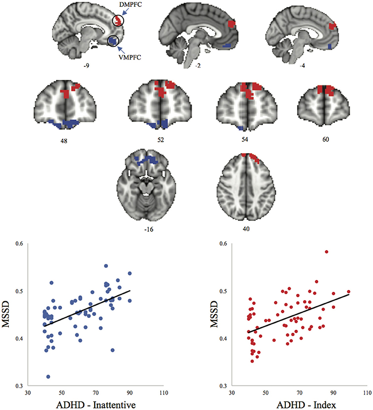 Increase In Adhd Mirrors Academic >> Frontiers Resting State Brain Signal Variability In Prefrontal