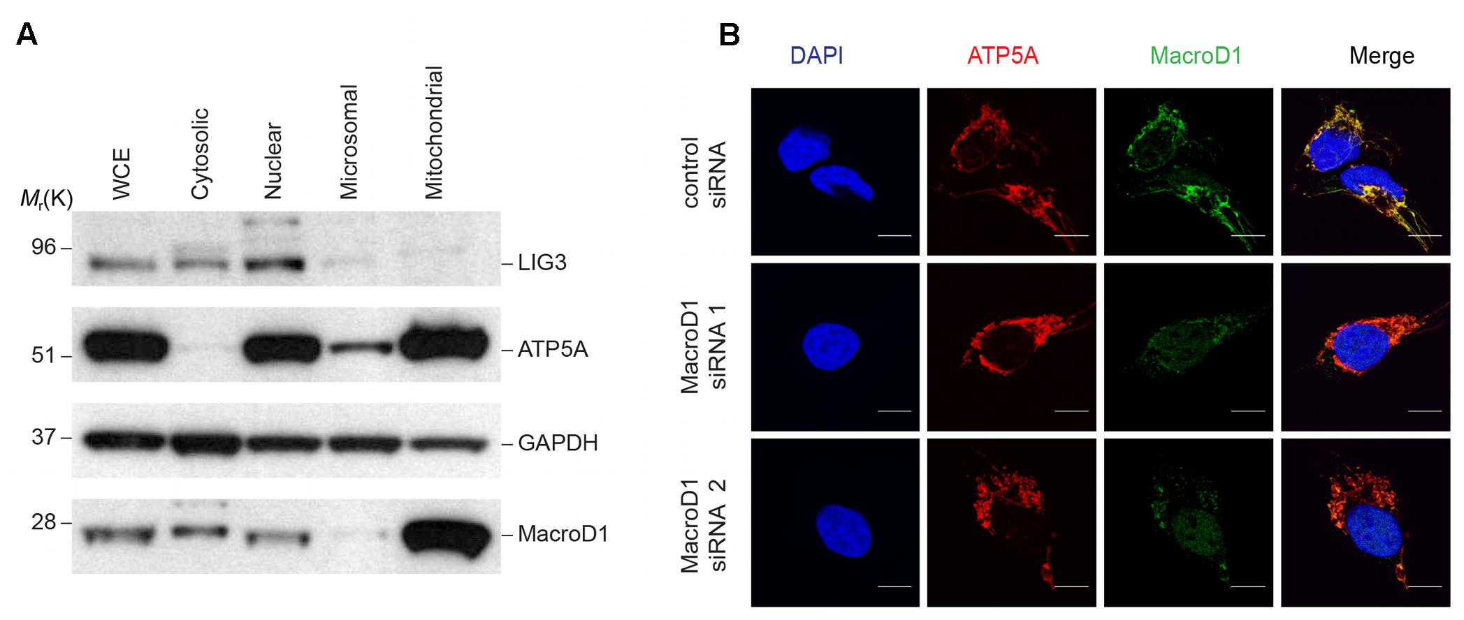 Frontiers | MacroD1 Is a Promiscuous ADP-Ribosyl Hydrolase Localized to Mitochondria | Microbiology