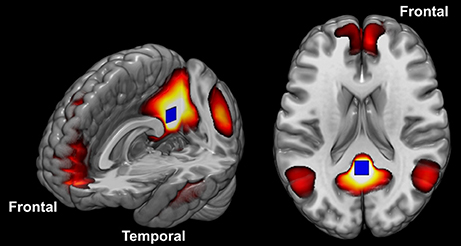 How Autism Changes Brain Scans Of >> Frontiers Differences In Cortical Structure And Functional Mri