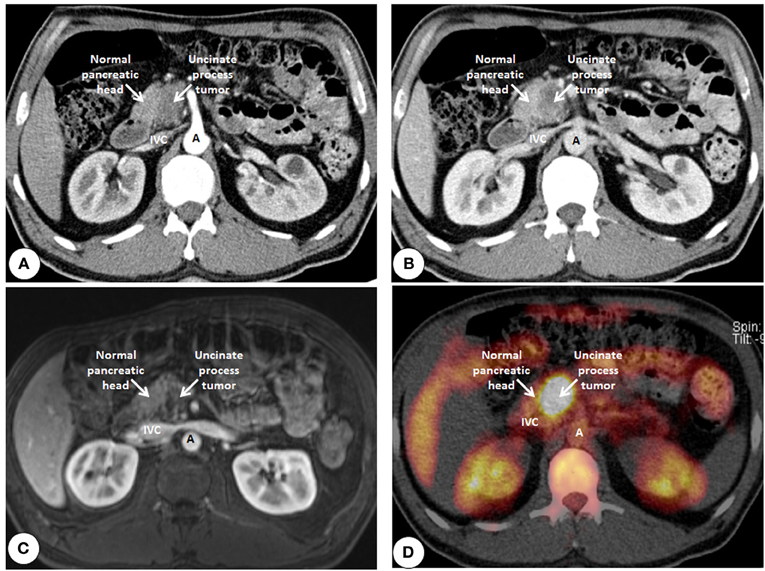 Frontiers | How fibrosis influences imaging and surgical ...