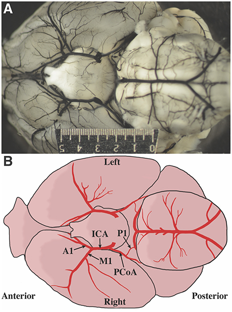 Frontiers Cerebral Artery Diameter In Inbred Mice Varies As A