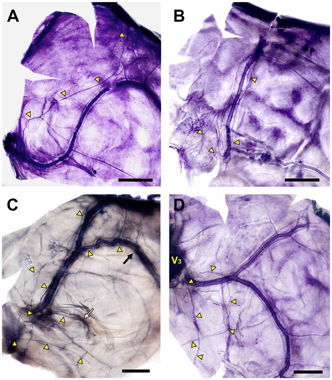 Frontiers | Macroscopic Innervation of the Dura Mater