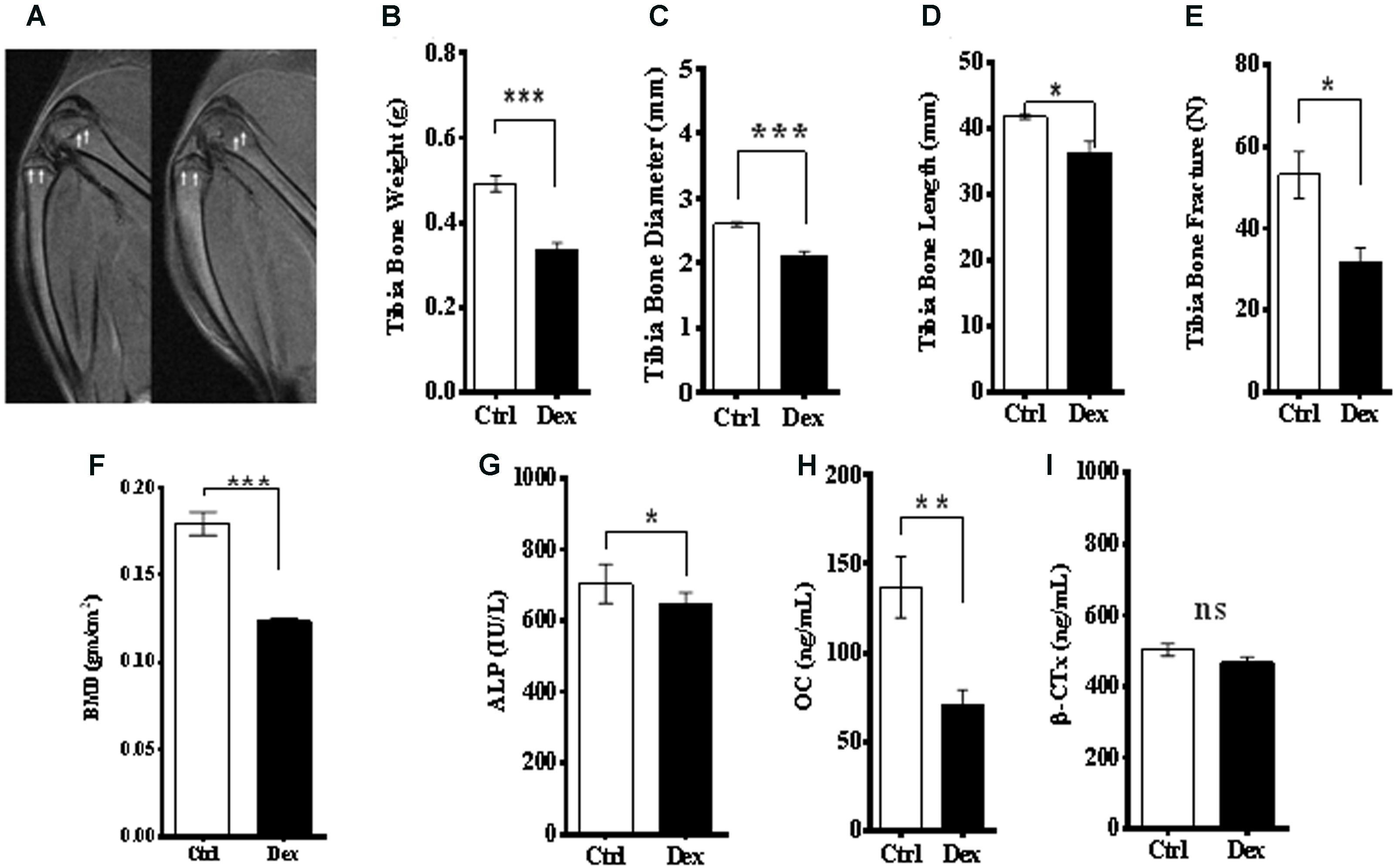 Frontiers Metabolomics Based Profiling Of Dexamethasone