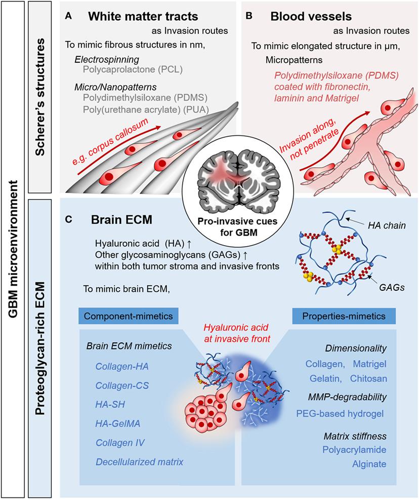 glioblastoma multiforme nivel iv