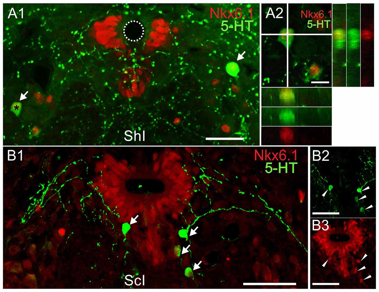 Frontiers Emergence Of Serotonergic Neurons After Spinal Cord