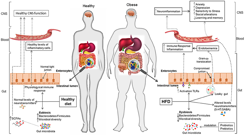 Frontiers | Interplay Between the Gut-Brain Axis, Obesity