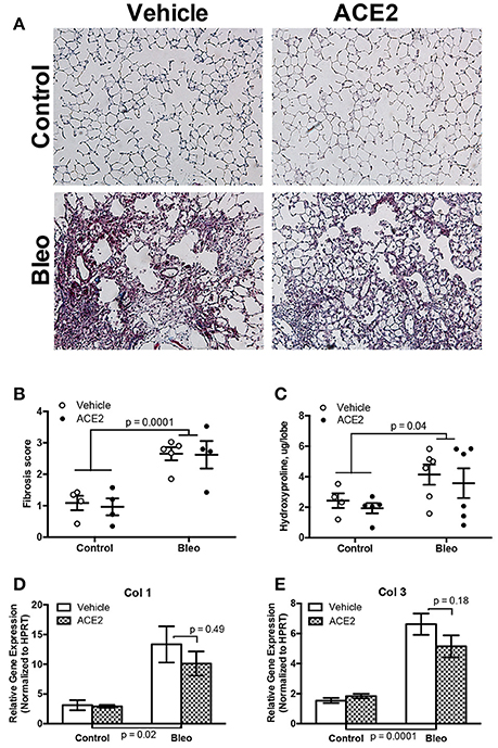 Frontiers | rhACE2 Therapy Modifies Bleomycin-Induced Pulmonary