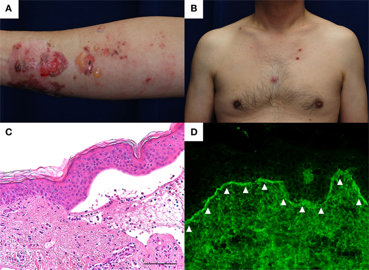 Frontiers | Bullous Pemphigoid Triggered by Thermal Burn