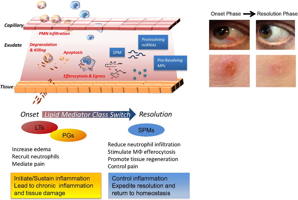 steroid anti inflammatory mechanism