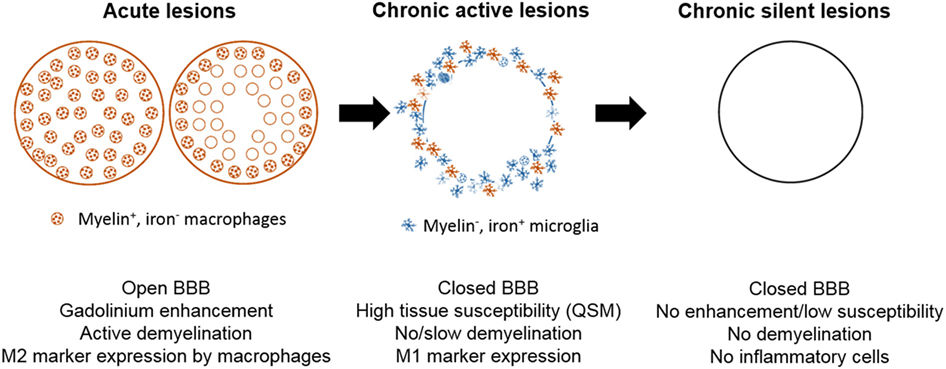 Frontiers | Significance and In Vivo Detection of Iron-Laden Microglia in  White Matter Multiple Sclerosis Lesions | Immunology
