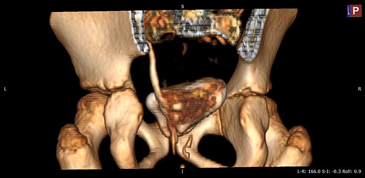 Frontiers | A Rare Case of Double-System With Ectopic