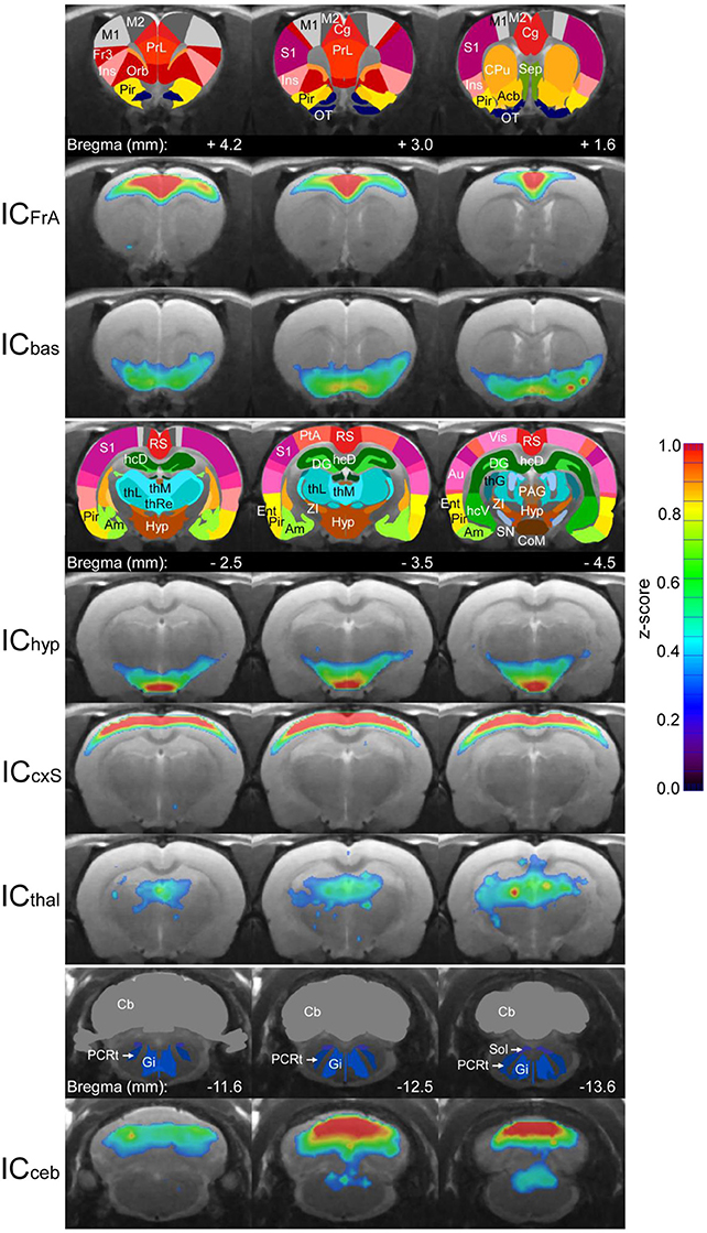 Frontiers | A New Analysis of Resting State Connectivity and