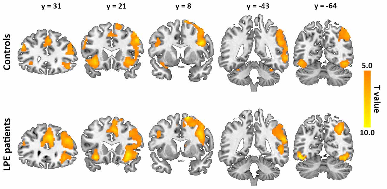 Frontiers | Central Neural Correlates During Inhibitory