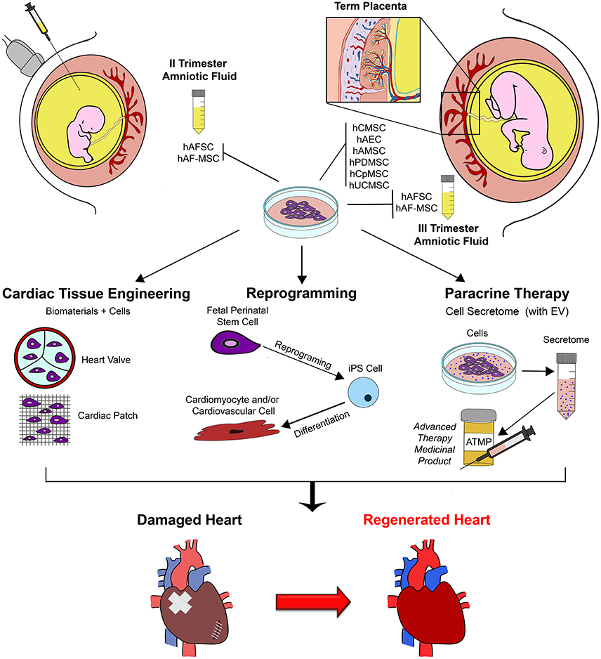 Cardiac Restoration Stemming From The Placenta