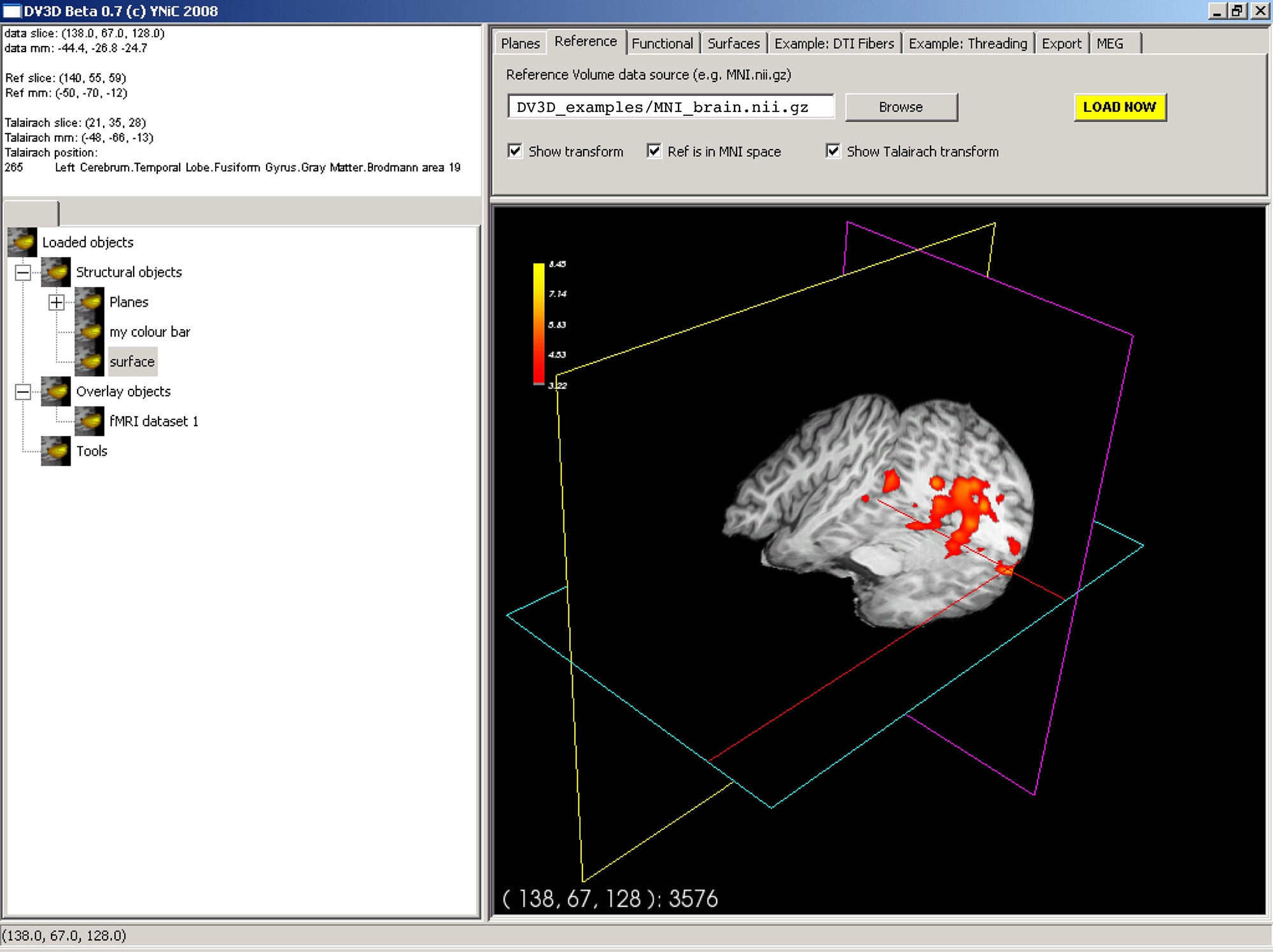 Frontiers | DataViewer3D: An open-source, cross-platform