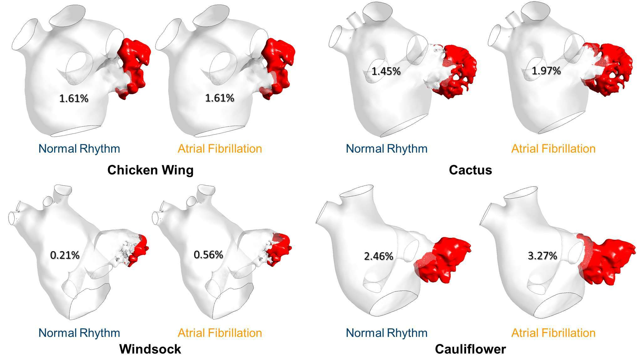 Frontiers Computational Fluid Dynamic Analysis Of The Left Atrial