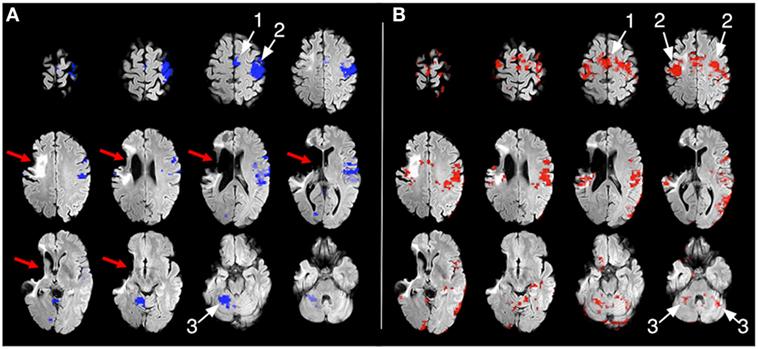 איור 2 - צילומים מבדיקת MRI תפקודי של המטופל, אשר מראים את החזרה לתפקוד בשני צדי המוח.