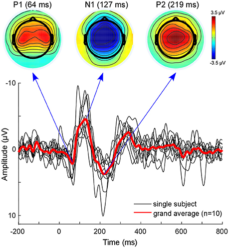 Frontiers | Source-Modeling Auditory Processes of EEG Data Using