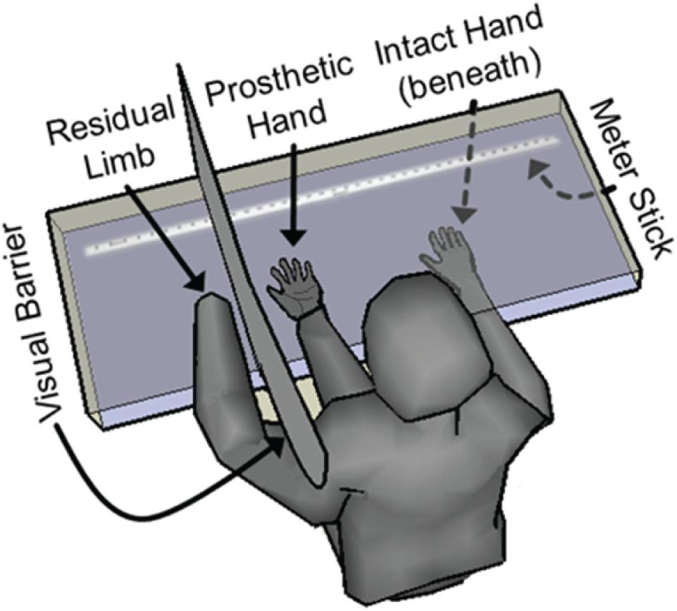 Frontiers Motor Control And Sensory Feedback Enhance Prosthesis External Device Controlvia Electromyographic Signals