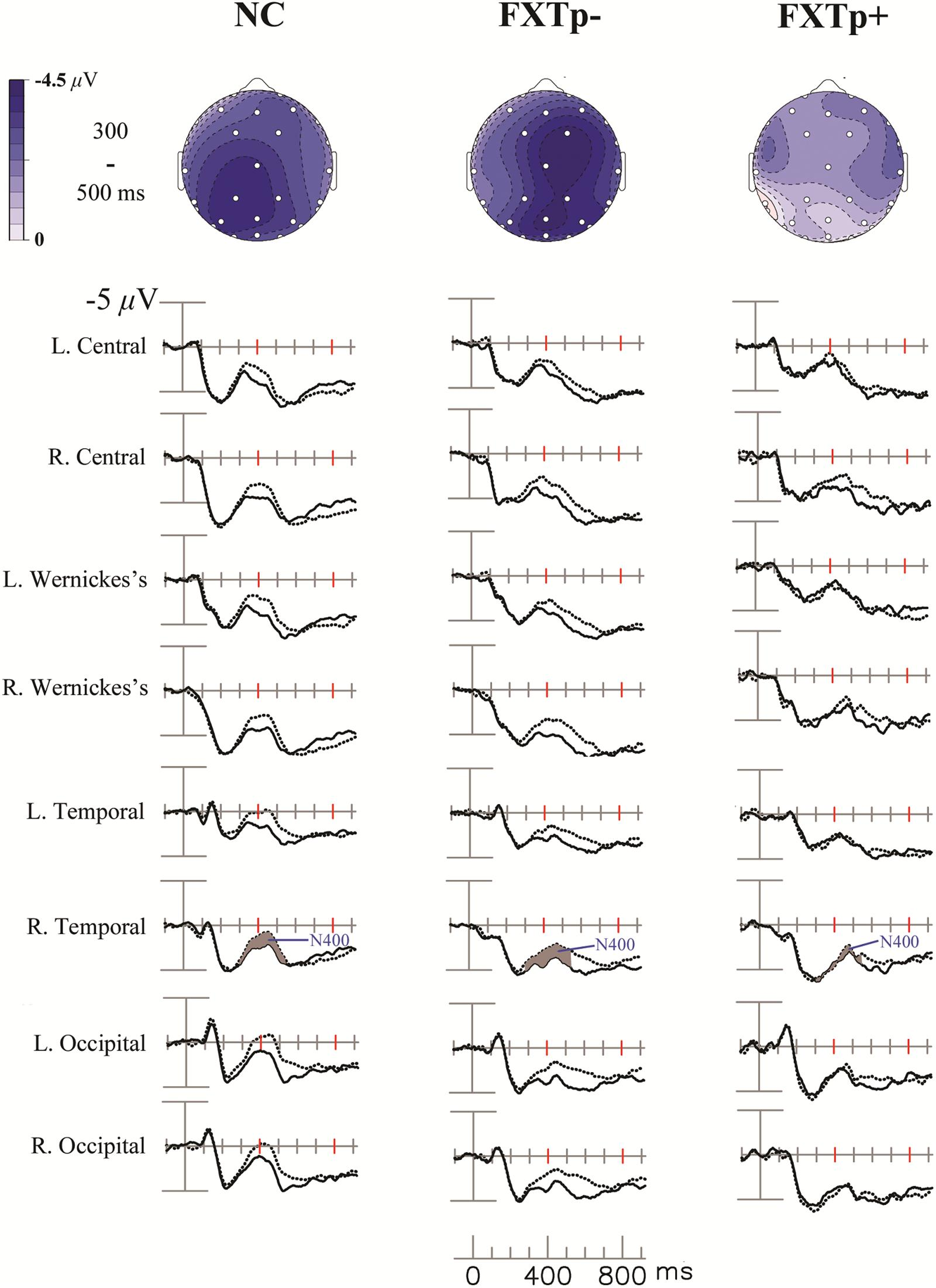 Frontiers | Cognitive Deficits and Associated ERP N400