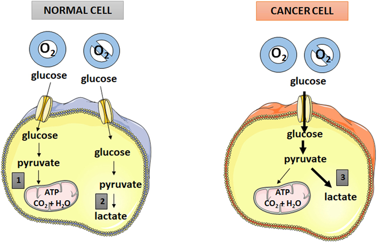 Frontiers | Antimetabolic Effects of Polyphenols in Breast Cancer