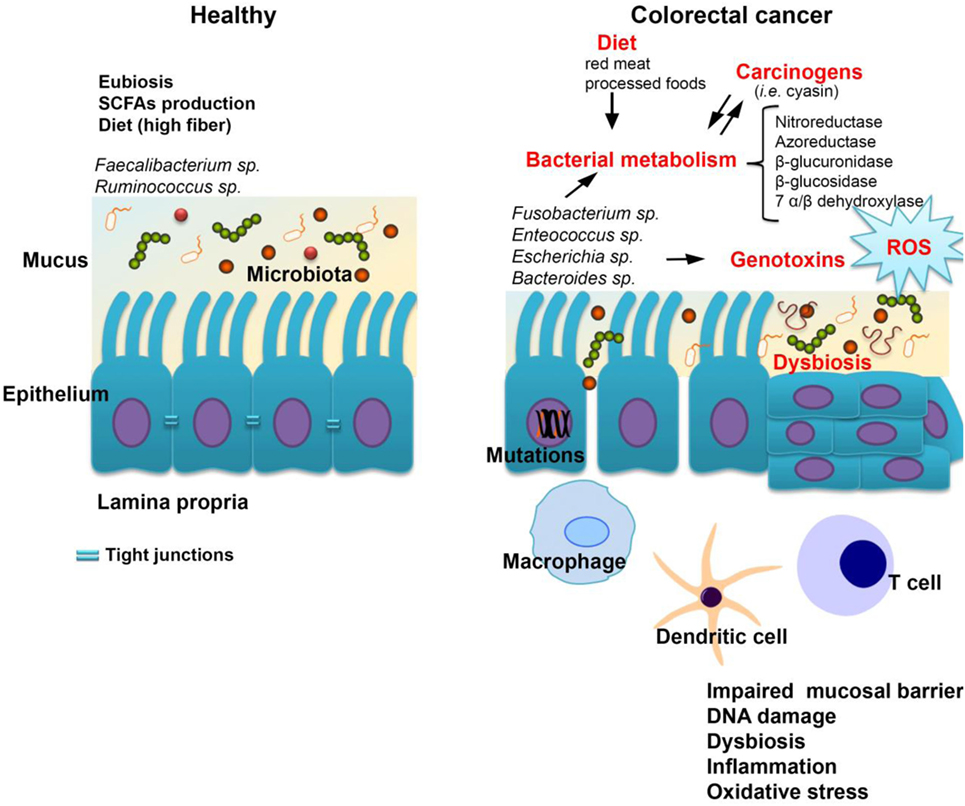 Immune System May Play Crucial Role In >> Frontiers Aspects Of Gut Microbiota And Immune System