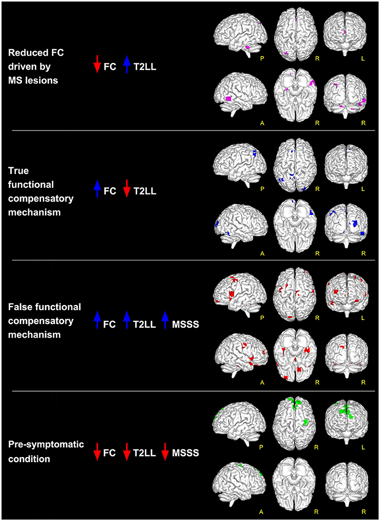 Frontiers | Functional Connectivity Alterations Reveal Complex