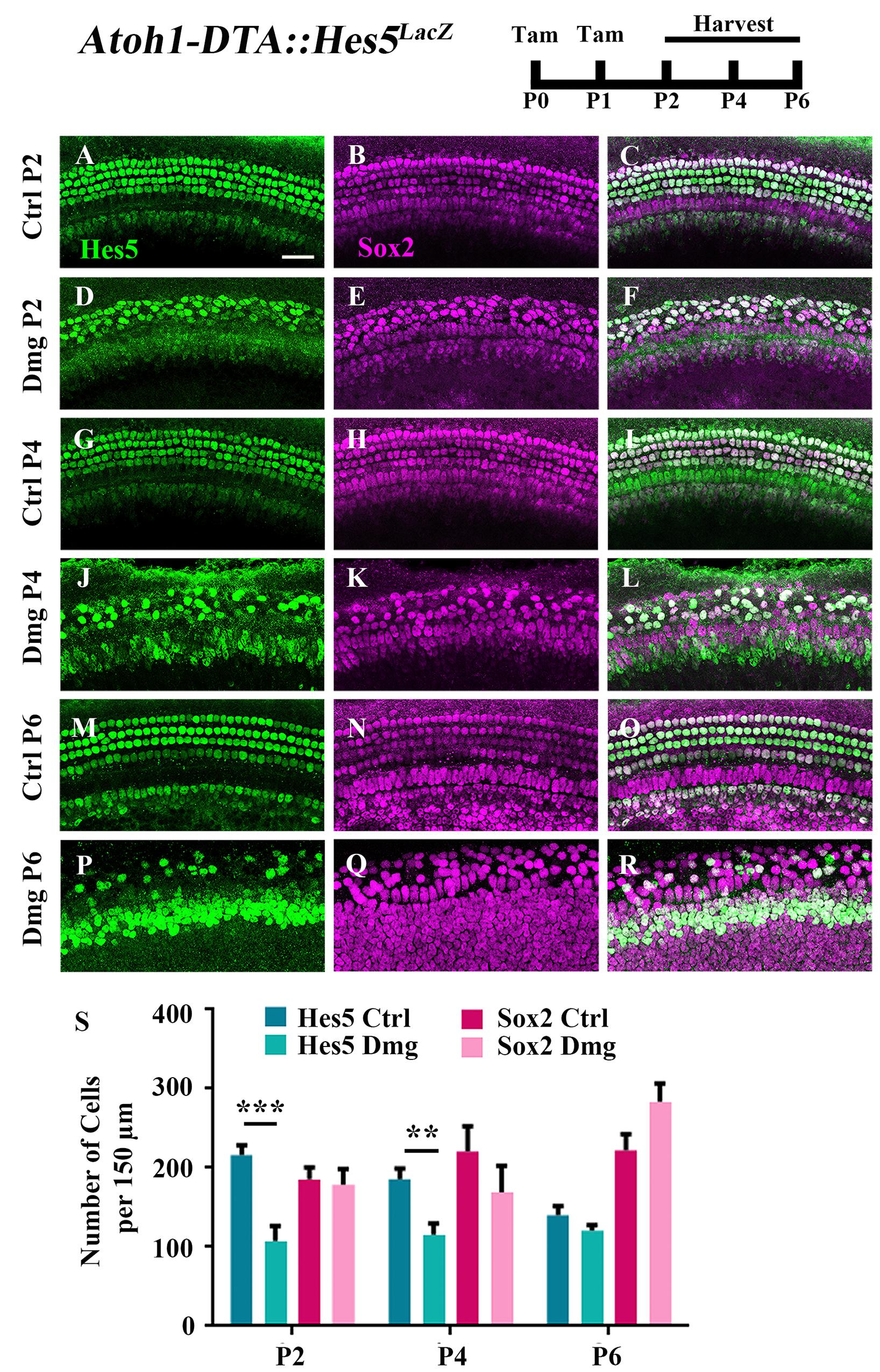 Frontiers | Spontaneous Hair Cell Regeneration Is Prevented by