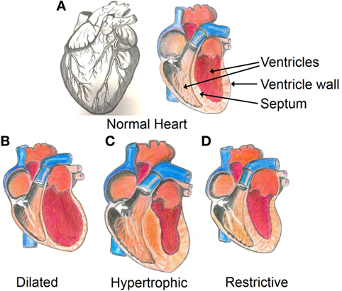 Figure 1 - Structure of the heart.