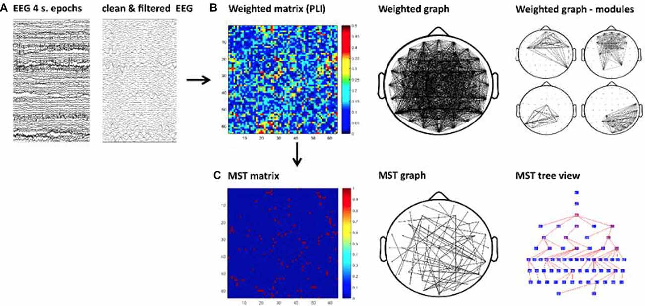 Frontiers | EEG Resting State Functional Connectivity in