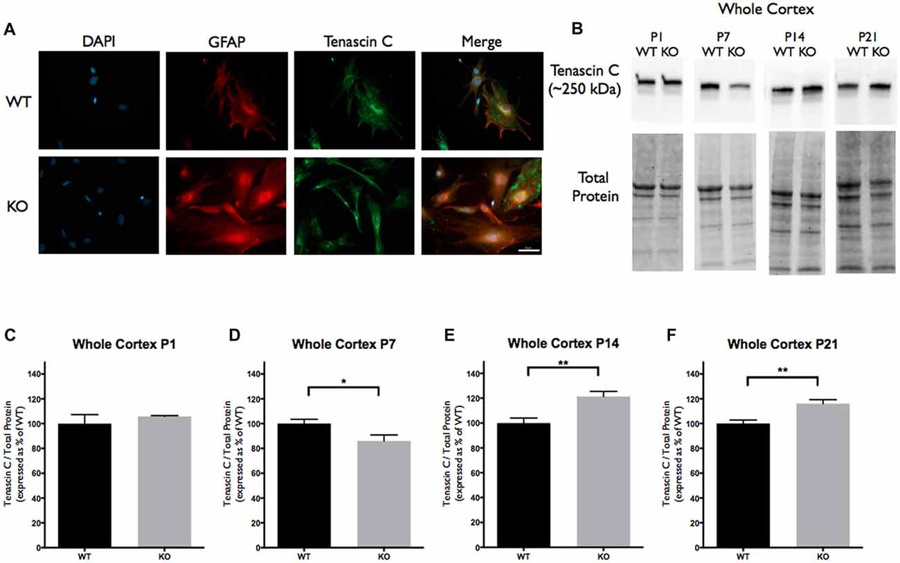 Frontiers | Regulation of IL-6 Secretion by Astrocytes via TLR4 in