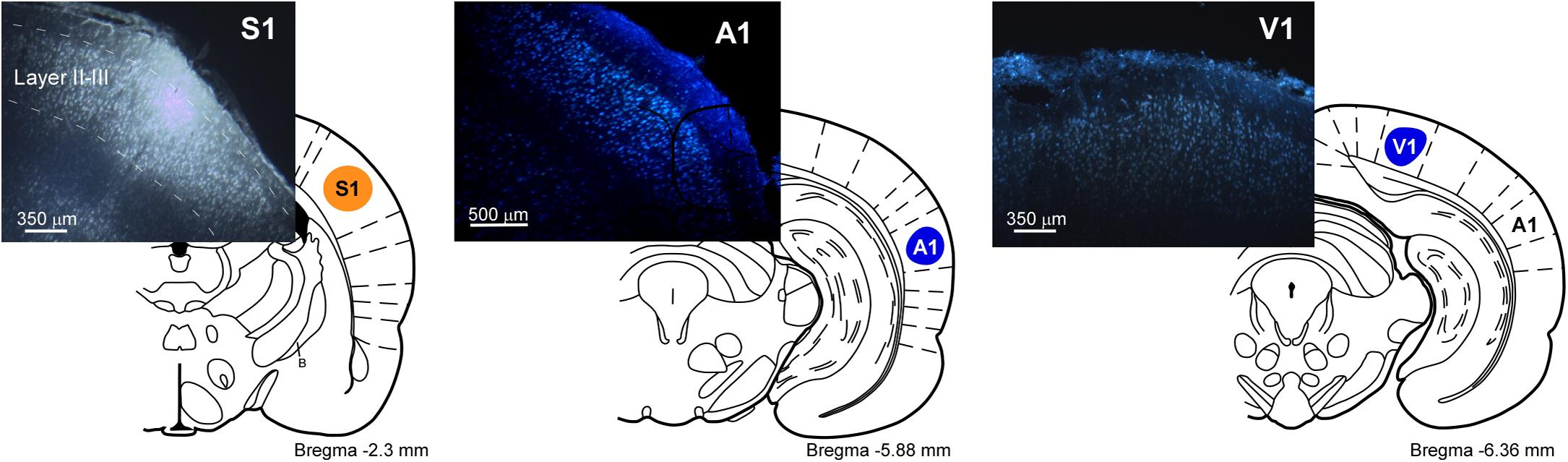 Frontiers Basal Forebrain Nuclei Display Distinct Projecting Pb30 Wiring Diagram Figure 1 Schematic