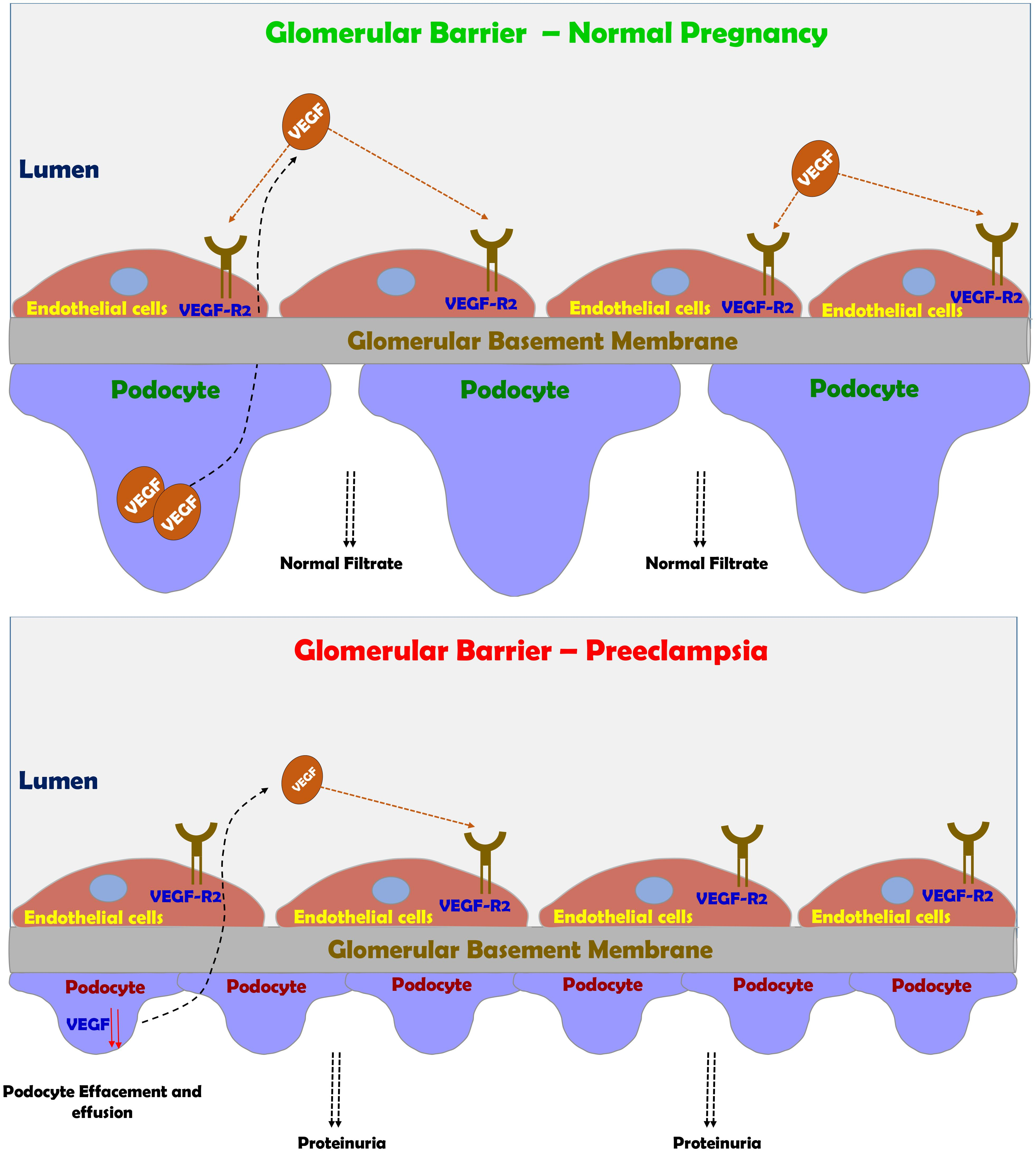 Frontiers Preeclampsia Novel Mechanisms And Potential Therapeutic Approaches Physiology