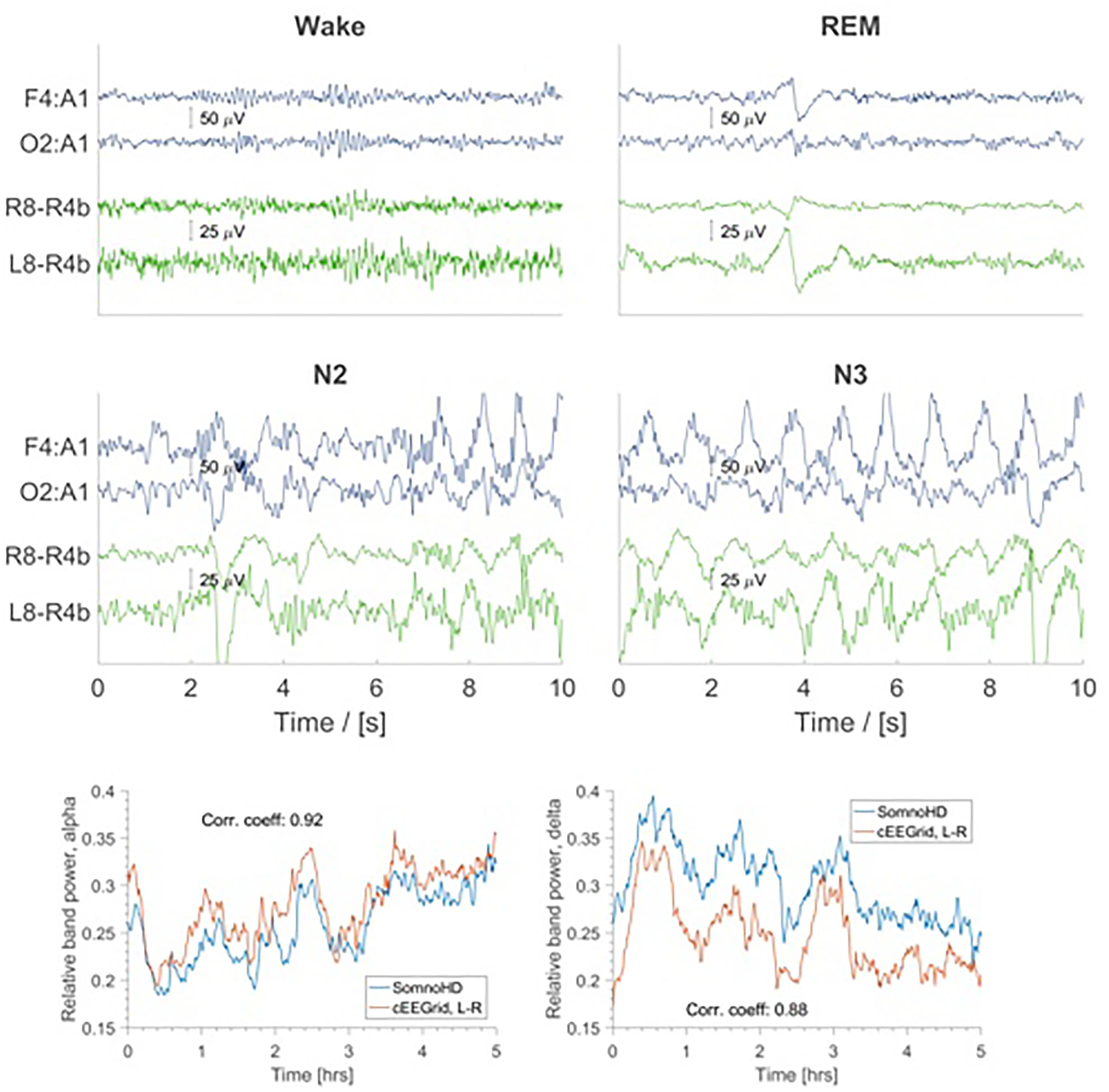 Frontiers | Sleep EEG Derived From Behind-the-Ear Electrodes