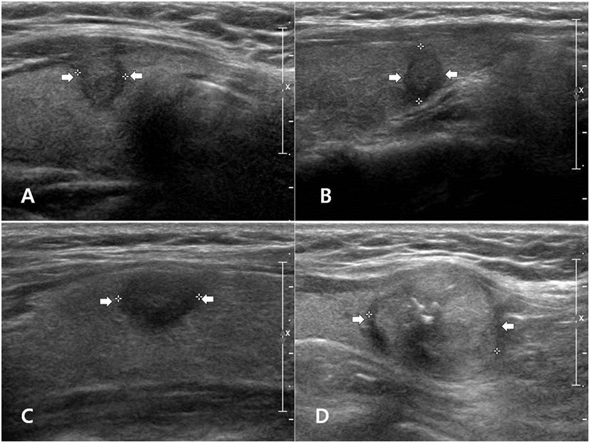 Frontiers Ultrasonographic Features Of Papillary Thyroid