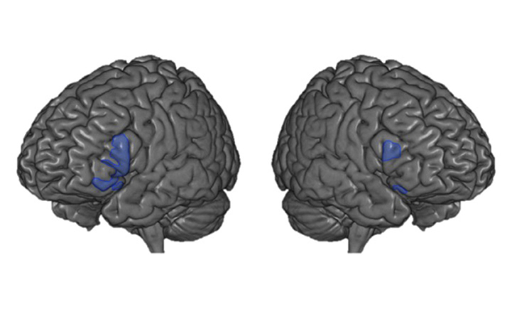 Figure 2 - In this figure, you are viewing the brain from the left side (left panel) and from the right side (right panel).