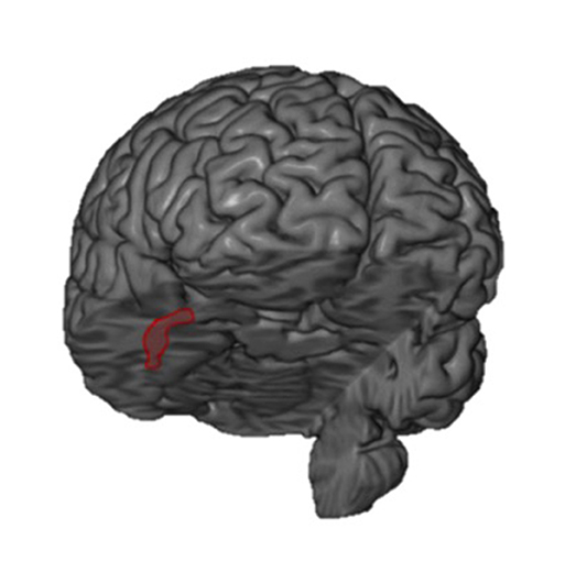 Figure 1 - In this figure, you are viewing the brain as if you were looking at the person's face.