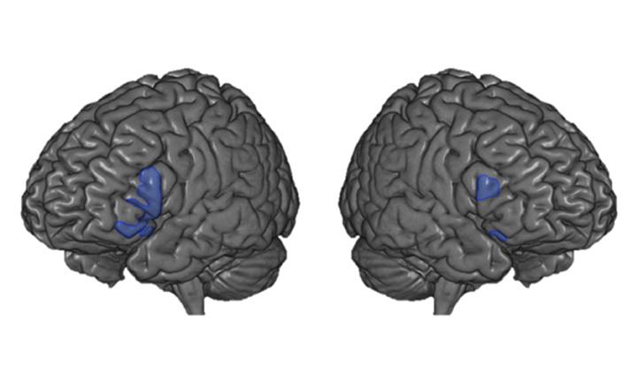 איור 2 - בתמונה השמאלית נראה המוח במבט משמאל, ובתמונה הימנית – במבט מימין.