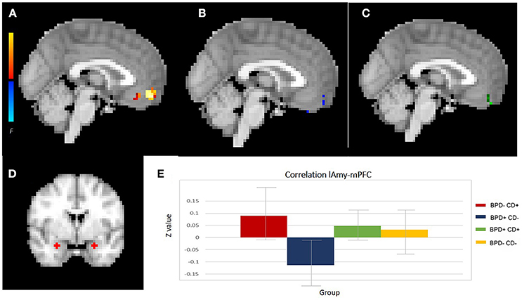 Frontiers   Borderline Personality Disorder With Cocaine Dependence