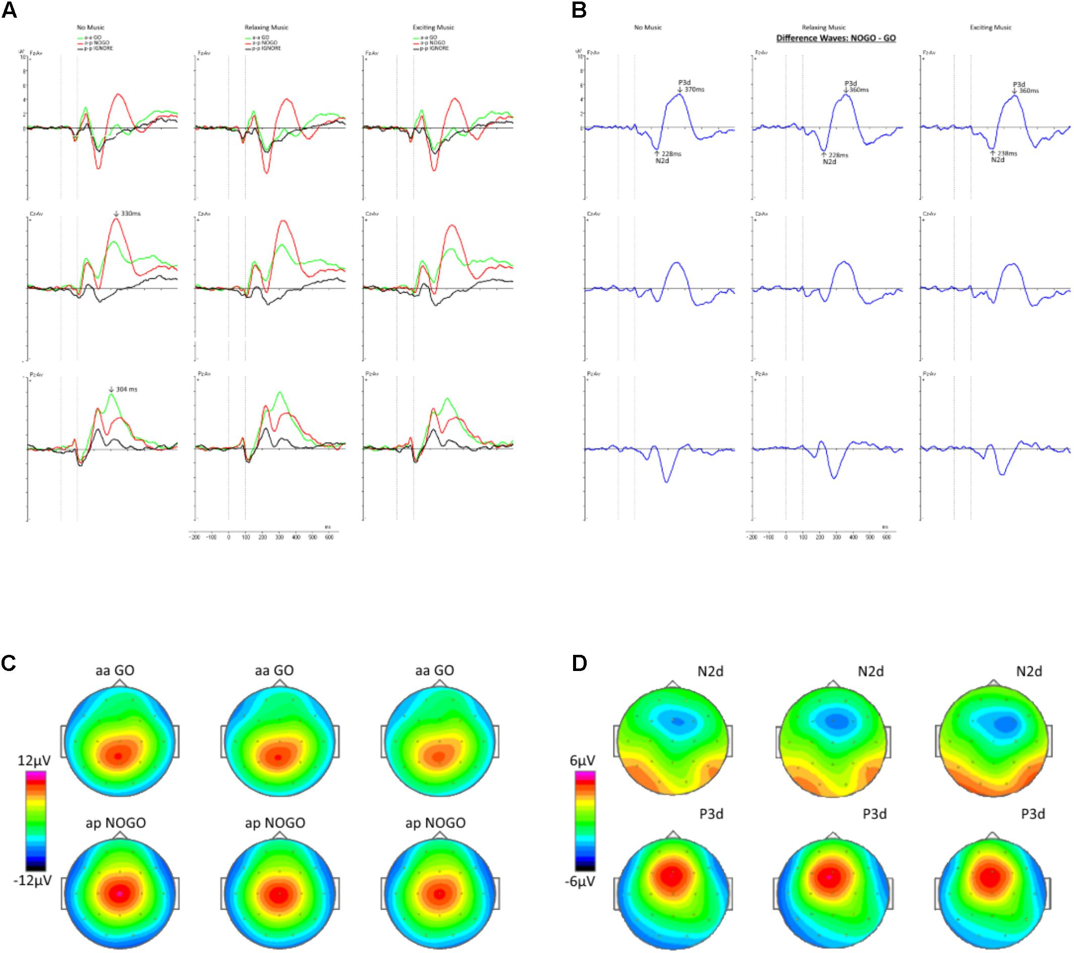 Frontiers   The Effect of Background Music on Inhibitory Functions