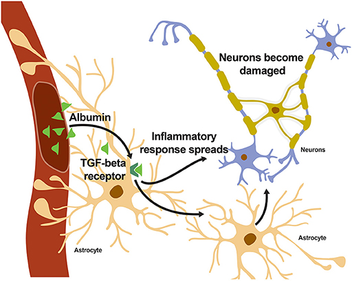 Figure 2 - When albumin enters the brain and binds to the TGF-β receptor on astrocytes, an inflammatory response spreads throughout the brain, eventually reaching the neurons.
