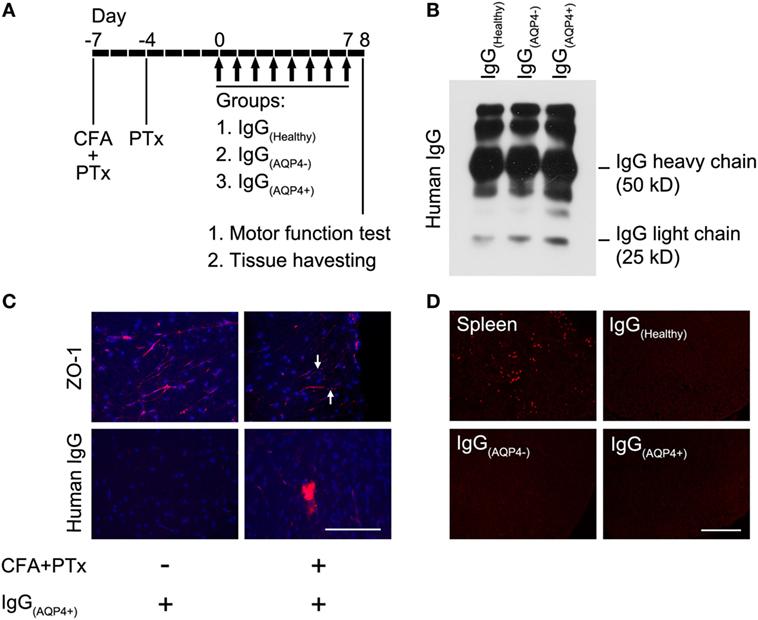 Frontiers | Aquaporin-4 Autoantibodies From Neuromyelitis
