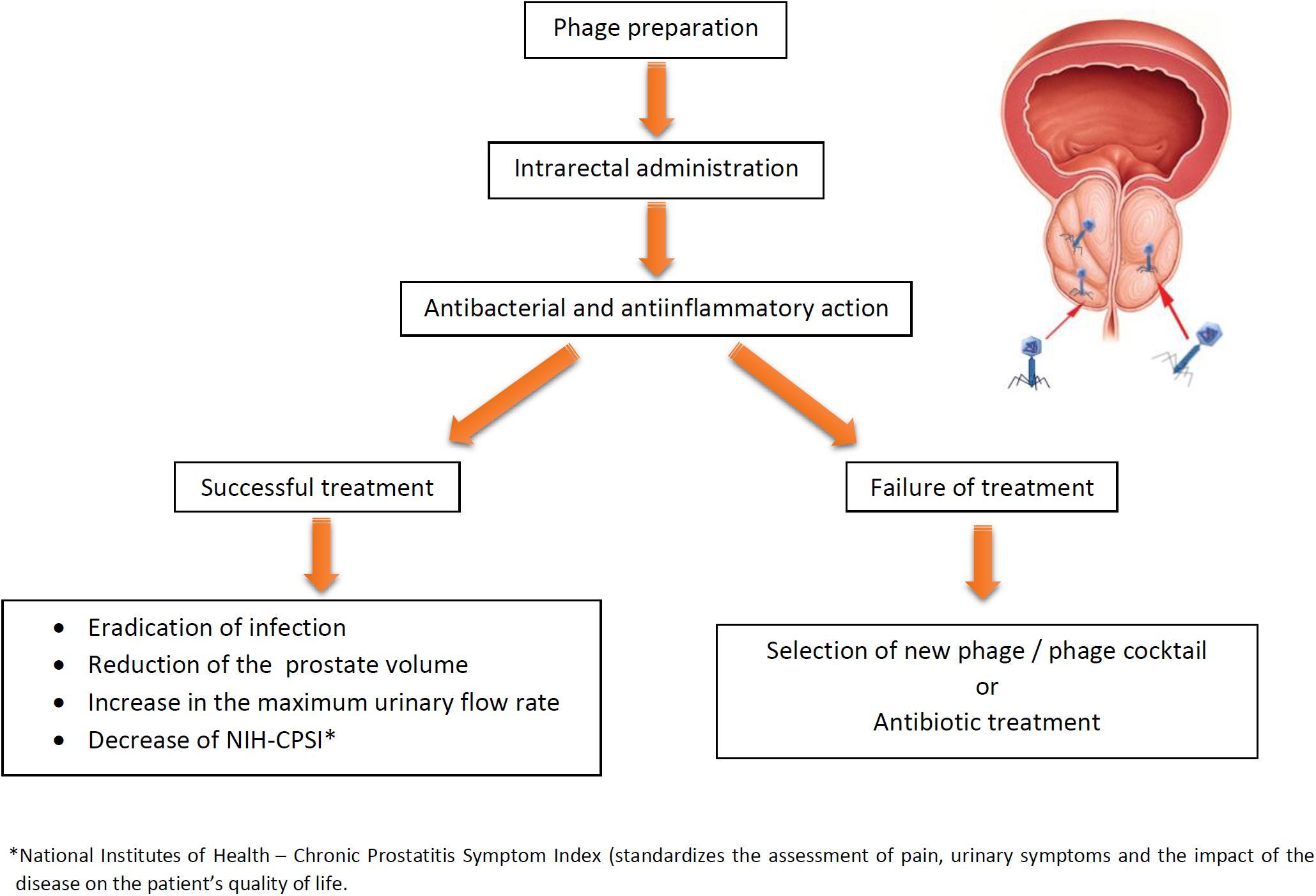 Es una prostatitis no bacteriana curable