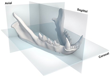 Frontiers   Three Dimensional Osteometric Analysis of Mandibular Symmetry and Morphological