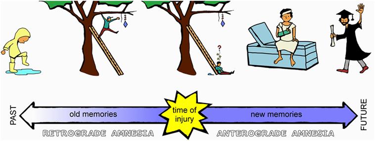 Figure 2 - Anterograde and retrograde amnesia.