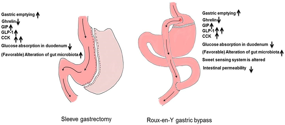 Frontiers | What Has Bariatric Surgery Taught Us About the