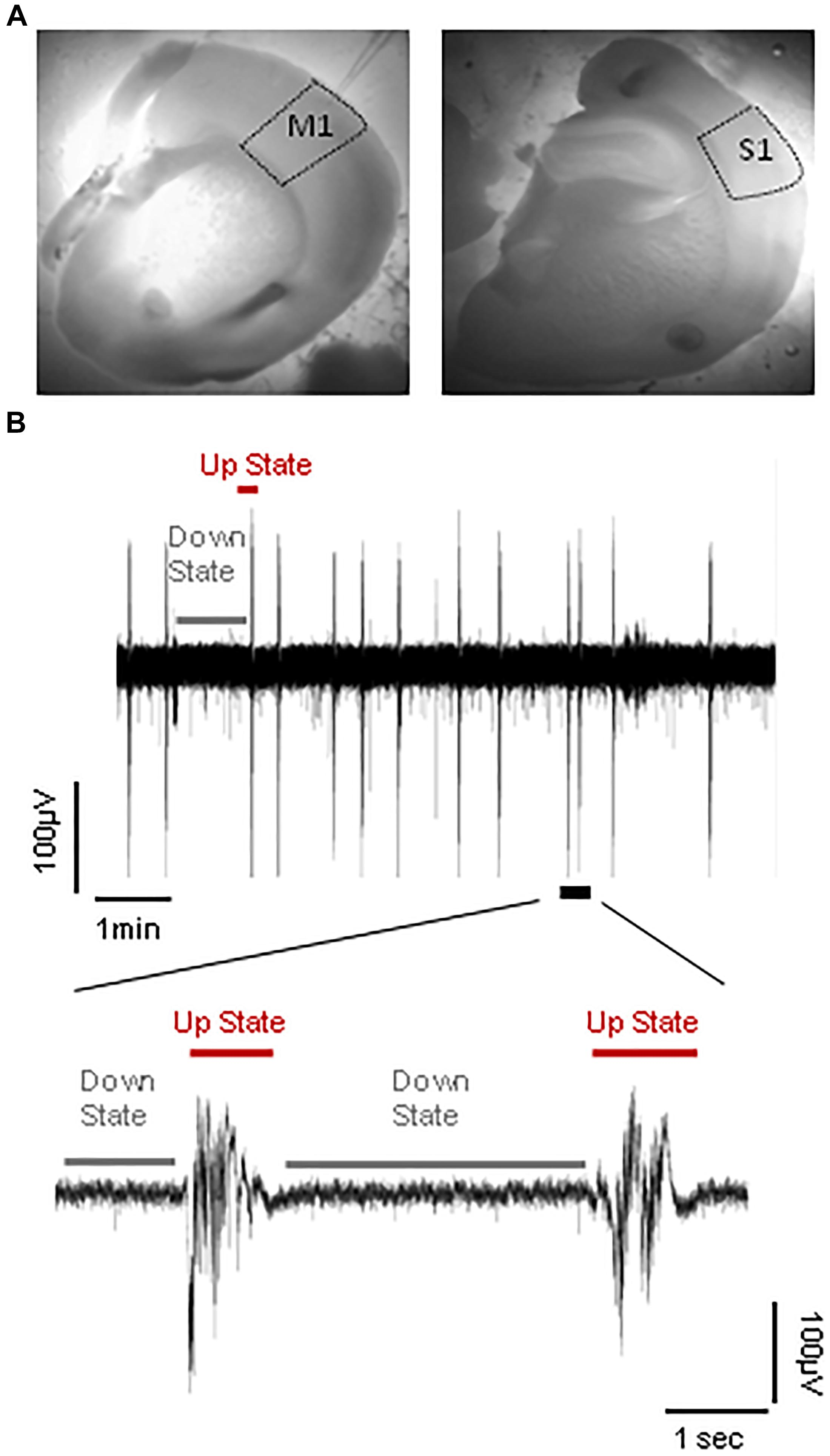 Frontiers Long Term Effects Of Early Life Seizures On Endogenous Rc Allen Instrument Wiring Diagrams