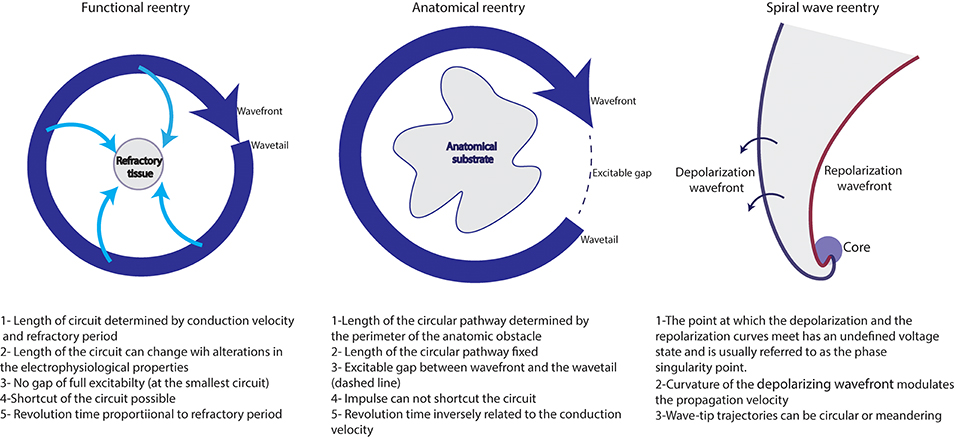 Frontiers | Atrial Fibrillation Mechanisms and Implications